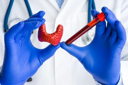 Diagnósticos médicos de laboratorio, pruebas y hormonas para la foto del concepto de la glándula tiroides. Médico o técnico de laboratorio sostiene en una mano un tubo de ensayo de laboratorio con sangre, en la otra mano - figura de tiroides