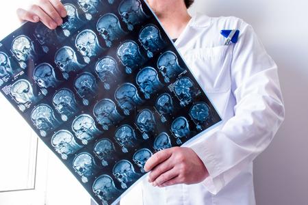 Neurólogo o neurocirujano en posición vertical sosteniendo un escaneo cerebral de resonancia magnética para verlo y explorarlo en busca de patologías del sistema nervioso central. Concepto fotográfico de diagnósticos de resonancia magnética y tomografía computarizada en neurología y neurocirugía