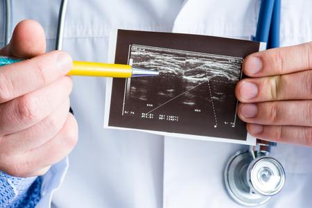 Acondroplasia sulla foto del concetto di immagine ad ultrasuoni. Medico che indica a penna sull'immagine stampata patologia ecografica - acondroplasia o ipocondroplasia. Foto per diagnosi, radiologia
