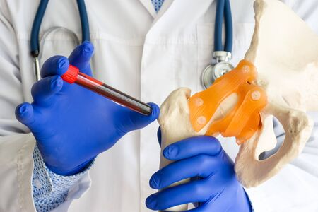 Laboratory medical diagnostics, tests for bones and joint concept photo. Doctor or laboratory technician holds in one hand laboratory test tube with blood, in other hand - model of bone and hip joint