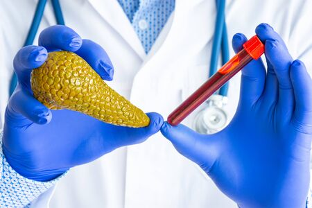 Laboratory medical diagnostics, tests and analysis for pancreas gland concept photo. Doctor or laboratory technician holds in one hand laboratory test tube with blood, in other - figure of pancreas
