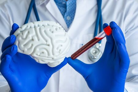 Laboratory medical diagnostics, tests for brain and neurological system concept photo. Doctor or laboratory technician holds in one hand laboratory test tube with blood, in other - figure of brain