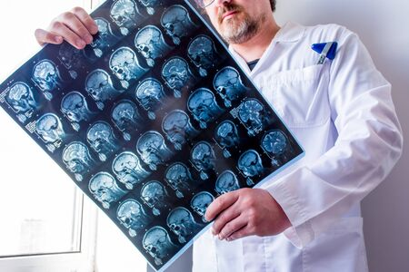 Doctor examines MRI scan of head, neck and brain of patient, holding in hands. Concept photo of instrumental diagnostics anatomy of organs of nervous system to determine cause of disease like headache Zdjęcie Seryjne