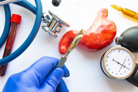 Concept photo of stomach or gastric surgery. Doctor with scalpel in his hand makes an incision in figure of human stomach, which is located near medical toolkit - stethoscope , lab tube with blood 免版税图像