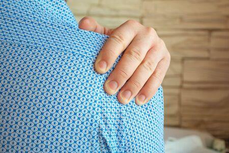 La persona se agarró del hombro con la palma de la otra mano debido al intenso dolor que sentía. Foto conceptual del síndrome de dolor de hombro, hombro congelado, periartritis, pellizco de nervios, artrosis que ocurre repentinamente