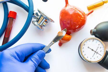 Foto de concepto de cirugía urológica, operación de próstata o vejiga. Médico con bisturí en la mano hace una incisión en la figura de la próstata humana, que se encuentra cerca del kit de herramientas médicas - estetoscopio Foto de archivo