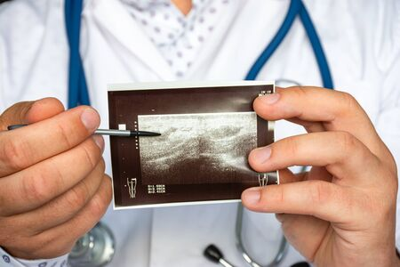 Abscess post injection after intramuscular injection in gluteal region on ultrasound image concept photo. Doctor indicating by pointer on printed picture of ultrasound pathology postinjection abscess