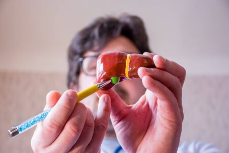 Doctor on defocused background holds in his hand anatomic model of gallbladder and liver, pointing with pen in hand on gall bladder in foreground. Localizing pathology, illness or problems with organ