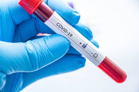 Laboratory technician, medical specialist, doctor or scientist holds blood test tube in his hand, where coVID-19 is written and positive result of analysis for coronavirus is shown to camera close-up 版權商用圖片