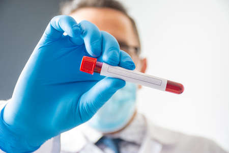 The doctor or laboratory assistant holds in his hand a laboratory tube with blood and a clean place to enter the text of the analysis that will be carried out. Concept photo for diagnostics of hormone 版權商用圖片