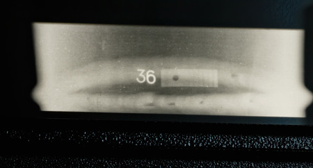 scoria: X-ray of a welded seam of the pipeline with obvious internal non-metallic inclusions