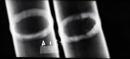 Transcript of x-ray images of welds of pipelines to identify defective areas Banco de Imagens - 118715233