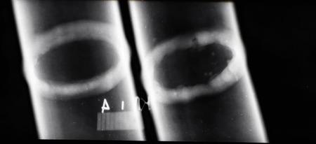 Trascrizione di immagini a raggi X di saldature di tubazioni per identificare aree difettose