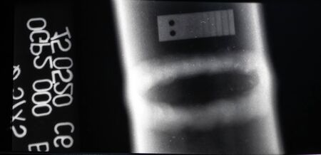 X-ray image of a welding seam without internal inclusions