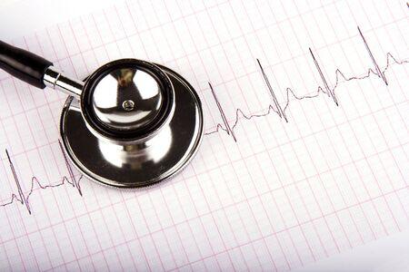 Een stethoscoop over een elektrocardiogram close up. Stockfoto