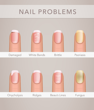 Nail problems and illness, vector poster Illustration