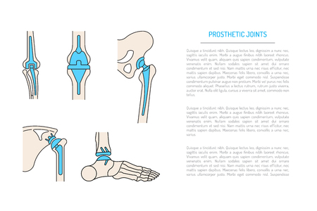acetabulum: Medical illustration of the implantation of the bone joints in the human skeleton. Layout of implants, artificial joints, in different parts of the human body