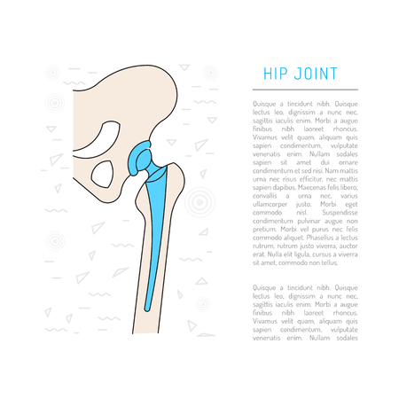 acetabulum: Medical illustration of the structure of the bones of the hip joint and the prosthesis, vector isolated on white background
