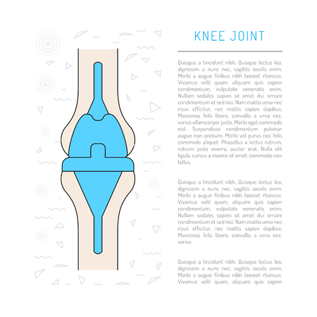 acetabulum: Treatment and prosthetics of the knee joint, Medical illustration in vector isolated on white background