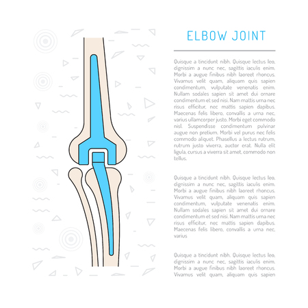 Elimination of pain in the elbow joint through a surgery to replace an elbow joint prosthesis