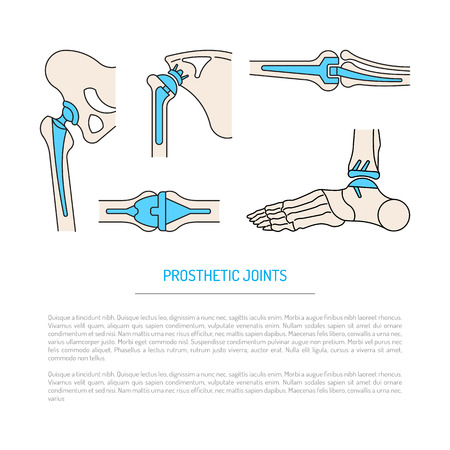 artificial leg: Vector banner on the theme of health, the health of human joints and methods of operative treatment by implantation. Vector illustration with place for text, isolated on white background