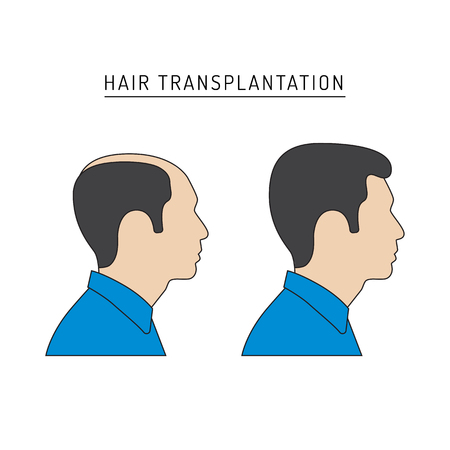 Infographics on the subject of hair transplantation on the example of a man with a picture of the result of transplantation before and after. Vector image of a patient isolated on white background Vetores