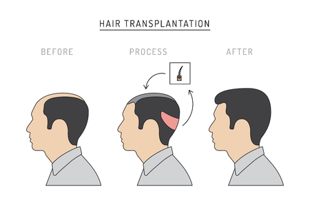 Infographics on the subject of hair transplantation on the example of a man with a picture of the result of transplantation before and after. Vector image of a patient isolated on white background Illustration