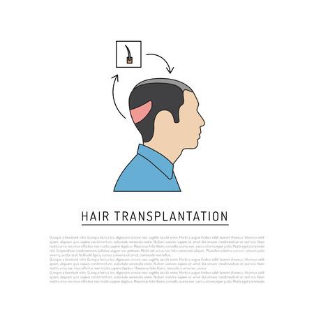 대머리의 장소에서 머리의 후두 지역에서 머리카락 이식 주제에 Infographics. 평면 스타일의 벡터로 그려진 구성표