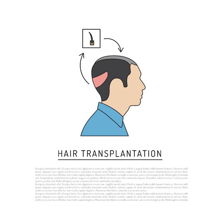 Infographics on the topic of transplantation of hair from the occipital region of the head at the place of baldness. The scheme drawn in vector in flat style