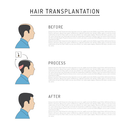 Infographics on the subject of hair transplantation on the example of a man with a picture of the result of transplantation before and after.