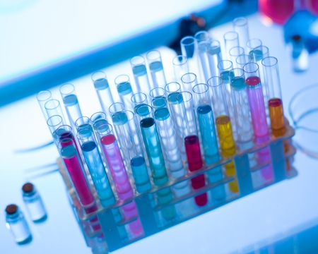 drug discovery: close-up of rack of medical tubes filled with colorful fluids placed on table in a laboratory