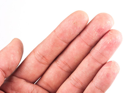 Closeup of Eczema Dermatitis on Back of Fingers photo