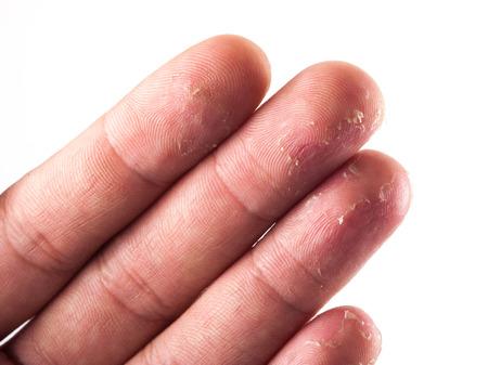 flaky: Closeup of Eczema Dermatitis on Back of Fingers