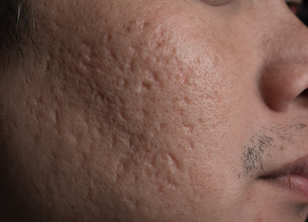 Facial problems,Acne scars on cheek