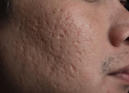 Problèmes faciaux, cicatrices d'acné sur la joue
