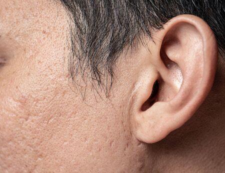 Asian man faceskin problem acne hole and scar