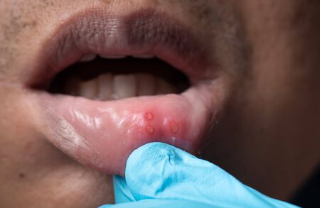 Close up mouth of asian man with aphthous stomatitis