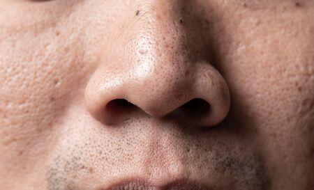 Asian man faceskin problem acne vulgaris on nose Reklamní fotografie