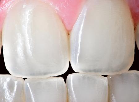 dientes sanos: Extreme close up de los dientes incisivos frontales de una hembra humana adulta