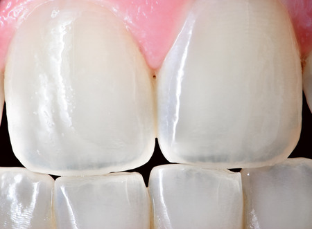 yellow teeth: Extreme close up of the front incisor teeth of an adult human female   Stock Photo
