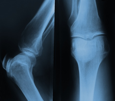 De rayos X de la rodilla. Frontal y lateral photo