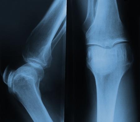 ortopedia: De rayos X de la rodilla. Frontal y lateral