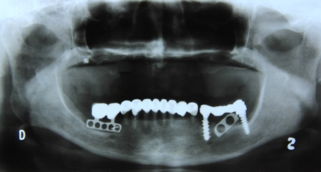 x ray equipment: X-ray of the mandible and denture