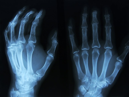 thumb x ray: X-ray of human left hand.
