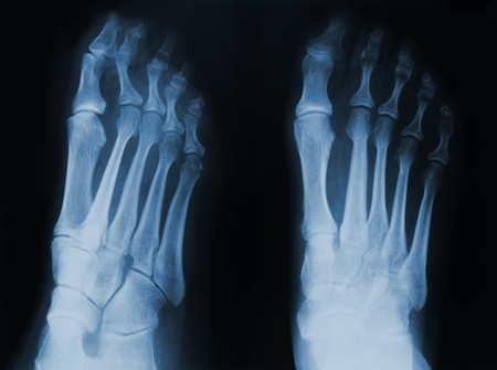 thumb x ray: X-ray of human foot. Stock Photo