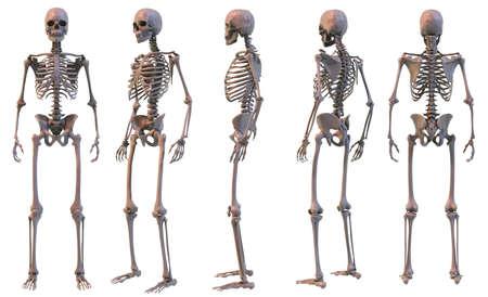 radius ulna: Skeleton, five views