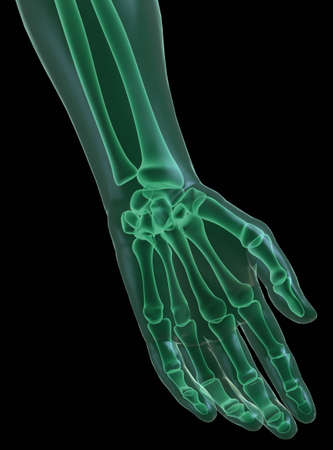 Hand x_ray on black Stock Photo - 13746944