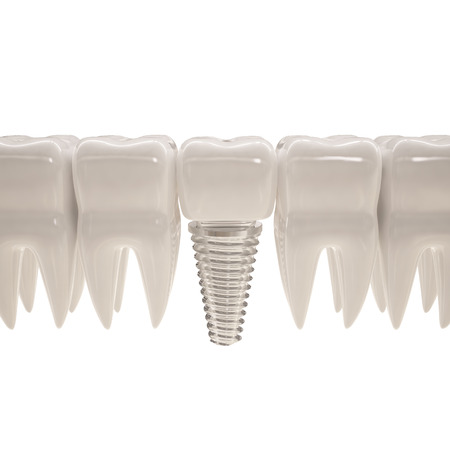 dental impression: 3d illustration of teeth with pin