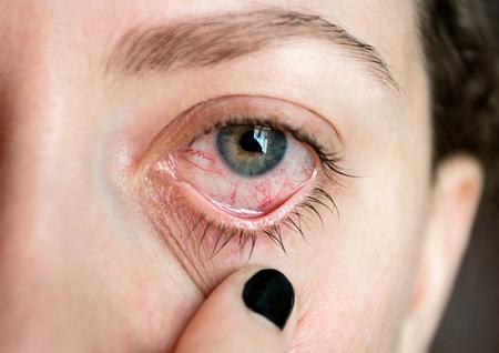 Eye illness. Ð¡onjunctivitis