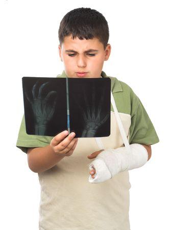 brazo roto: chico con brazo roto en su busca su x-ray  Foto de archivo